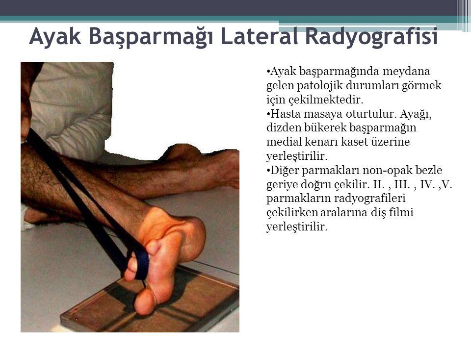 Ayak Başparmağı Lateral Radyografisi Ayak başparmağında meydana gelen patolojik durumları görmek için çekilmektedir. Hasta masaya oturtulur. Ayağı, di