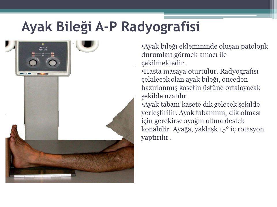 Ayak Bileği A-P Radyografisi Ayak bileği eklemininde oluşan patolojik durumları görmek amacı ile çekilmektedir. Hasta masaya oturtulur. Radyografisi ç