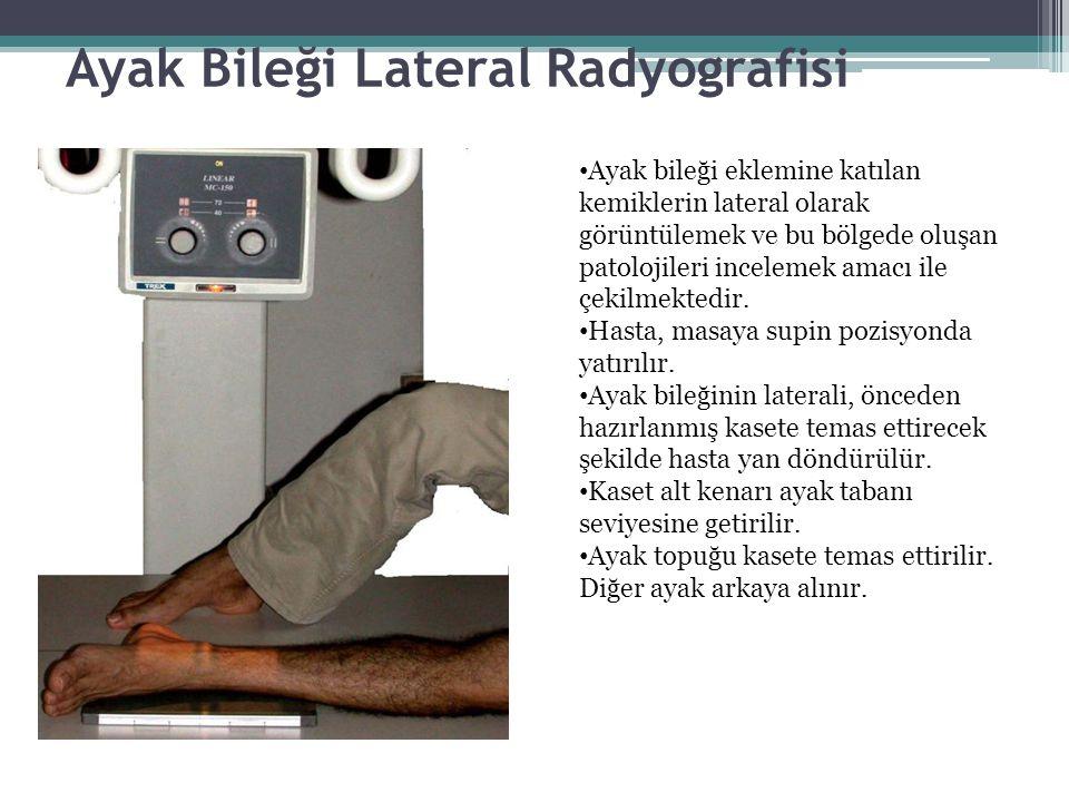 Ayak Bileği Lateral Radyografisi Ayak bileği eklemine katılan kemiklerin lateral olarak görüntülemek ve bu bölgede oluşan patolojileri incelemek amacı ile çekilmektedir.
