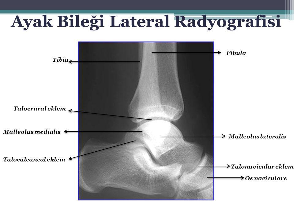 Tibia Fibula Malleolus lateralis Talonavicular eklem Os naciculare Talocrural eklem Malleolus medialis Talocalcaneal eklem Ayak Bileği Lateral Radyogr