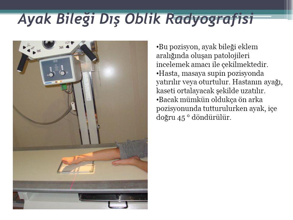Ayak Bileği Dış Oblik Radyografisi Bu pozisyon, ayak bileği eklem aralığında oluşan patolojileri incelemek amacı ile çekilmektedir. Hasta, masaya supi