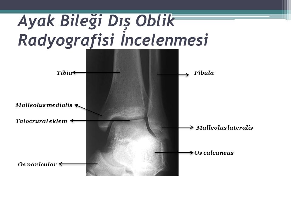 Ayak Bileği Dış Oblik Radyografisi İncelenmesi Tibia Malleolus medialis Talocrural eklem Malleolus lateralis Fibula Os navicular Os calcaneus