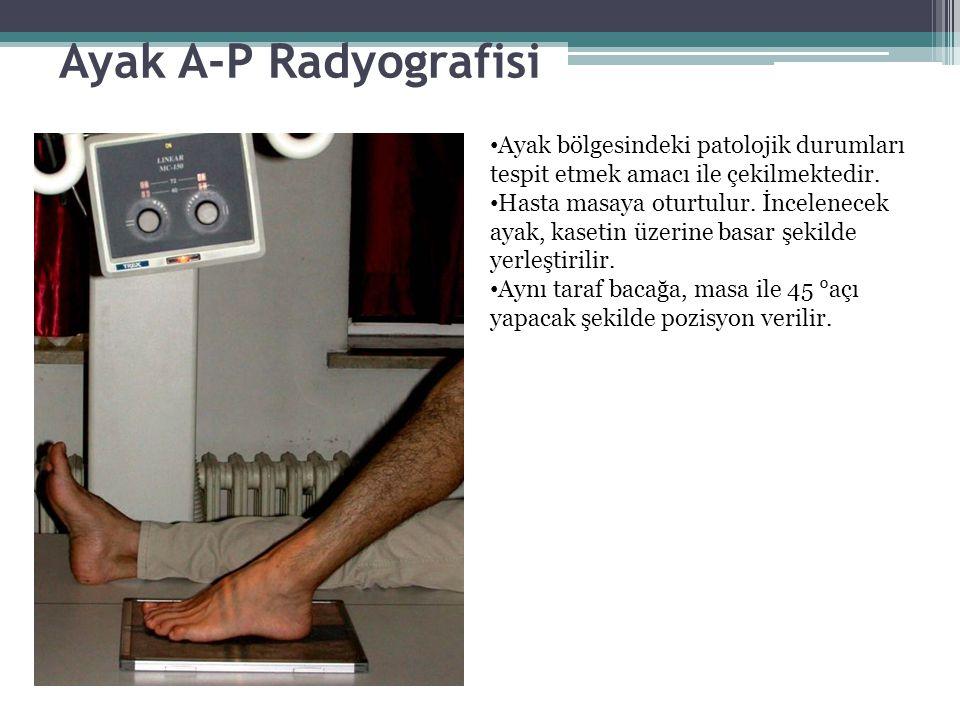 Ayak A-P Radyografisi Ayak bölgesindeki patolojik durumları tespit etmek amacı ile çekilmektedir. Hasta masaya oturtulur. İncelenecek ayak, kasetin üz