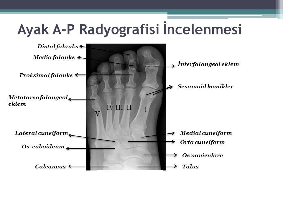 Ayak A-P Radyografisi İncelenmesi Distal falanks Media falanks Proksimal falanks İnterfalangeal eklem Sesamoid kemikler Medial cuneiform Orta cuneifor