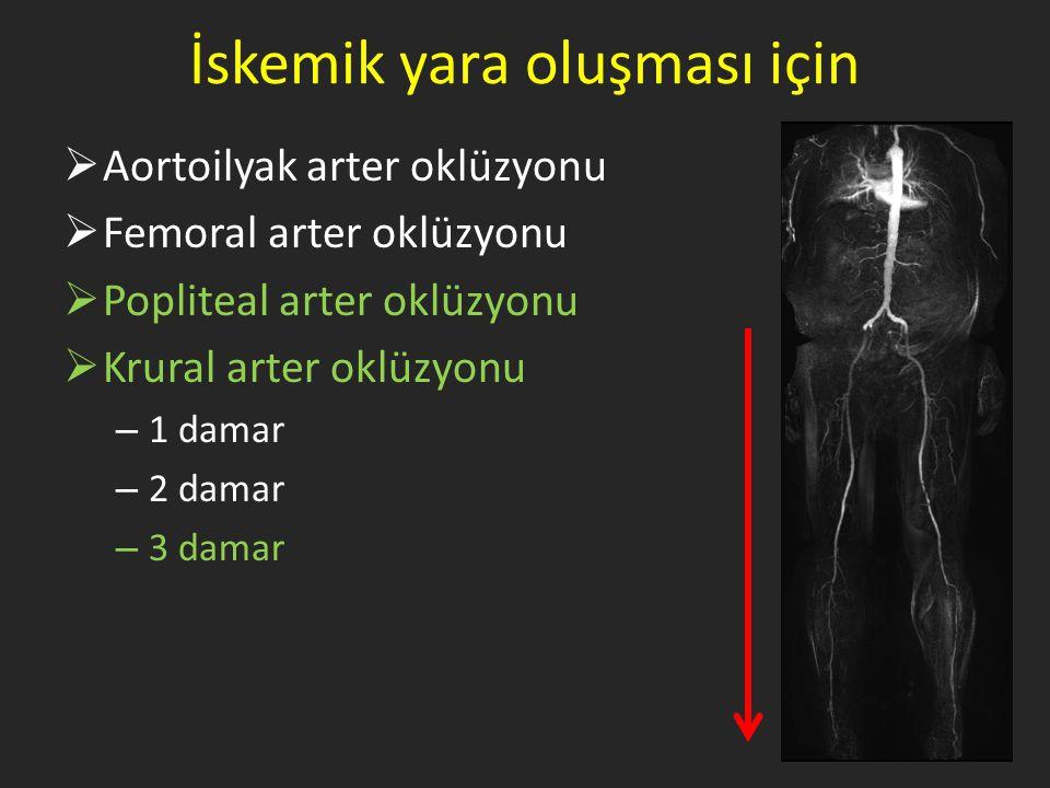 İskemik yara oluşması için  Aortoilyak arter oklüzyonu  Femoral arter oklüzyonu  Popliteal arter oklüzyonu  Krural arter oklüzyonu – 1 damar – 2 d