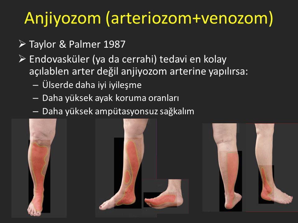 Anjiyozom (arteriozom+venozom)  Taylor & Palmer 1987  Endovasküler (ya da cerrahi) tedavi en kolay açılablen arter değil anjiyozom arterine yapılırsa: – Ülserde daha iyi iyileşme – Daha yüksek ayak koruma oranları – Daha yüksek ampütasyonsuz sağkalım