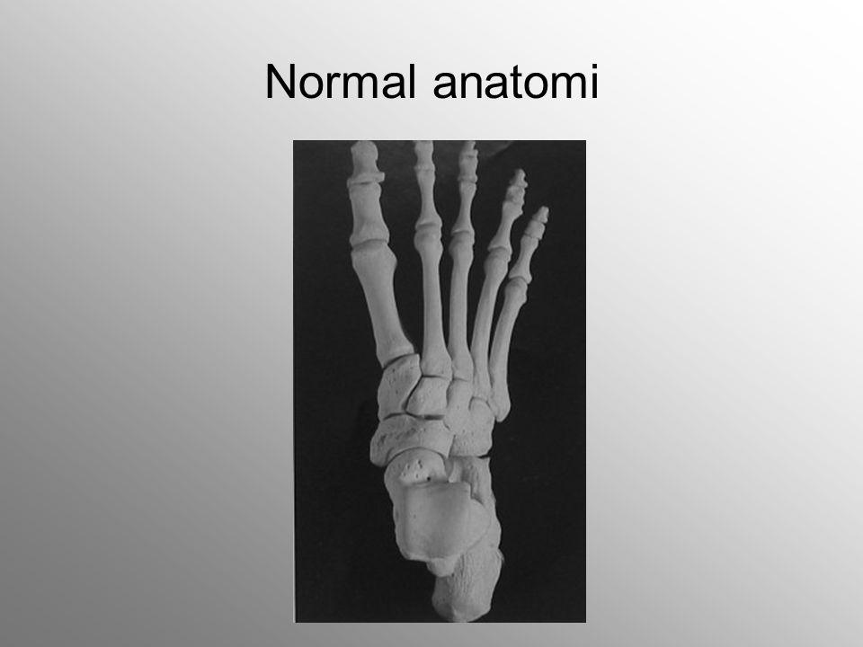 Anterior tendonlar
