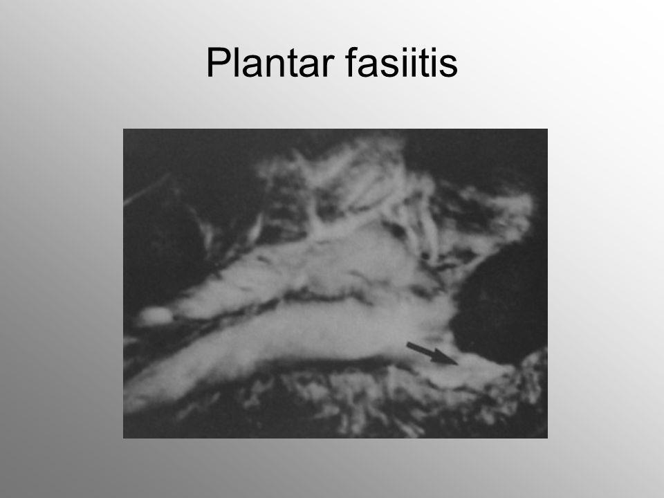 Plantar fasiitis