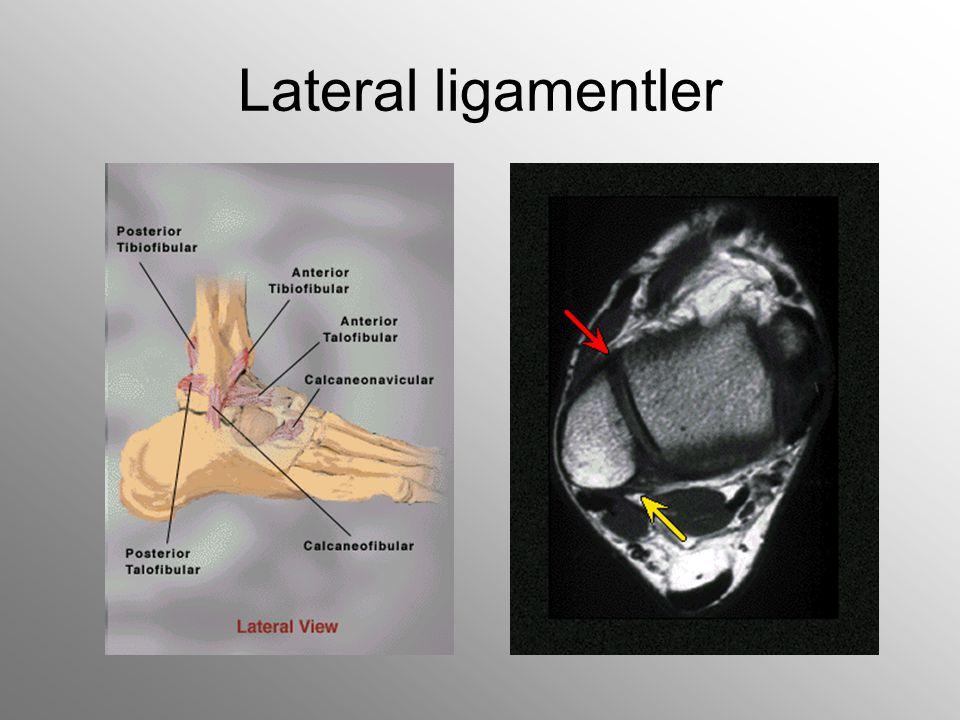 Ligament yaralanmaları