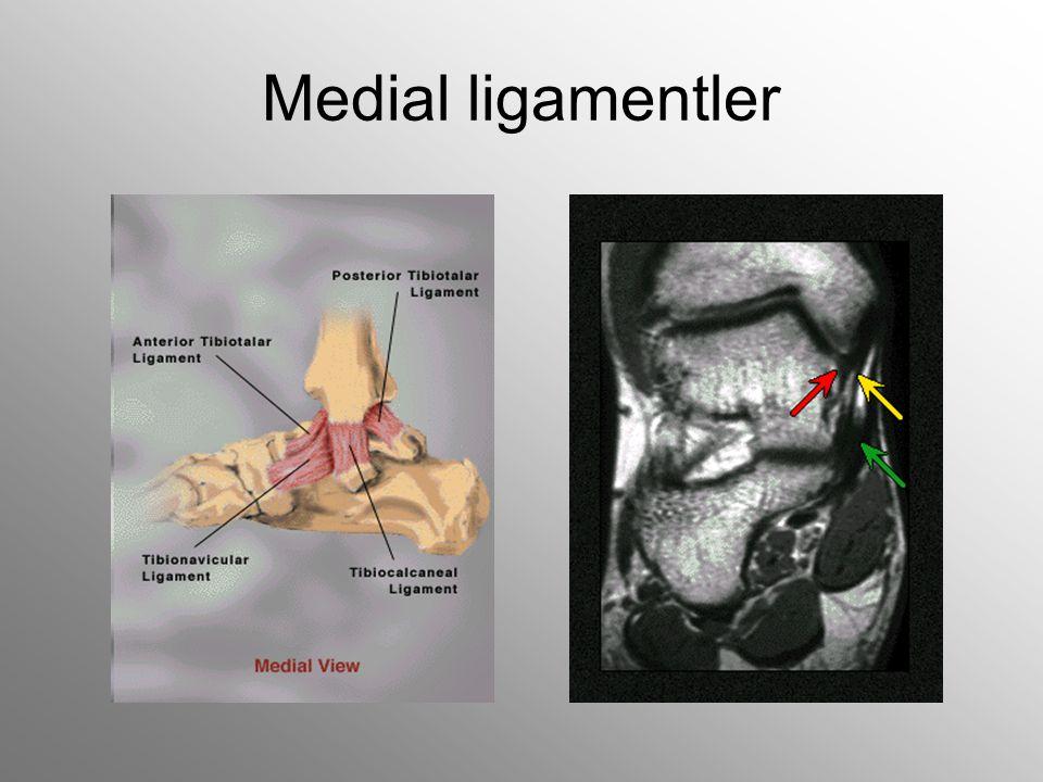Medial ligamentler