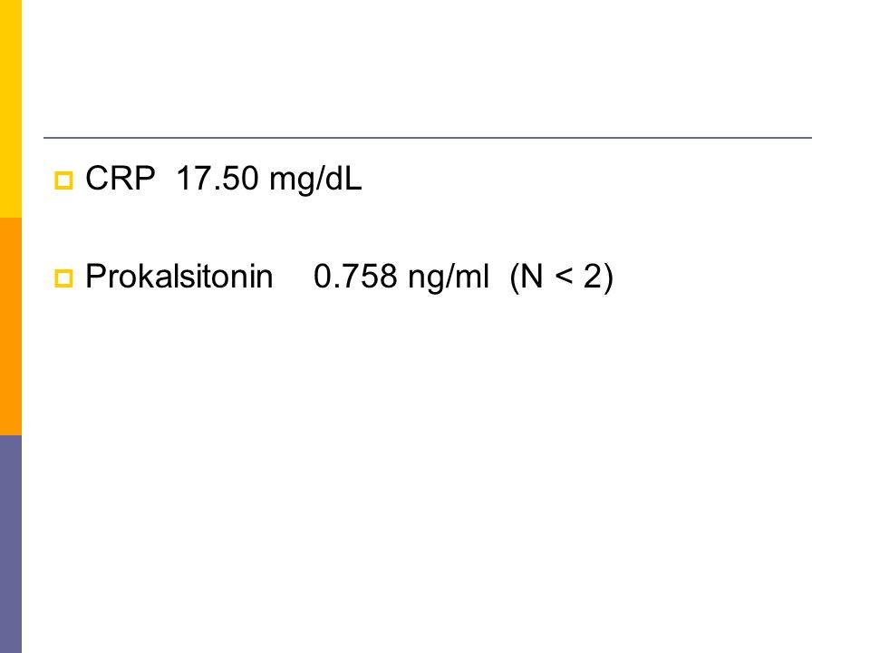  Prokalsitonin0.758 ng/ml (N < 2)