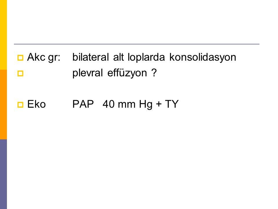  Akc gr: bilateral alt loplarda konsolidasyon  plevral effüzyon ?  Eko PAP 40 mm Hg + TY