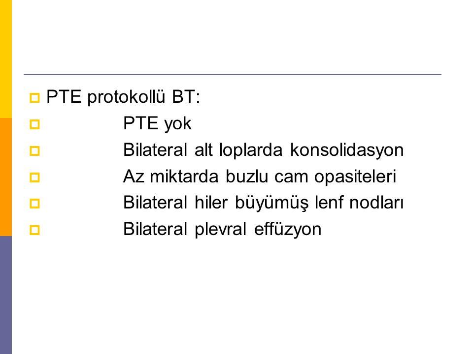  PTE protokollü BT:  PTE yok  Bilateral alt loplarda konsolidasyon  Az miktarda buzlu cam opasiteleri  Bilateral hiler büyümüş lenf nodları  Bil
