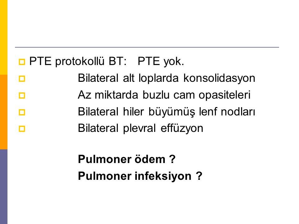  PTE protokollü BT:PTE yok.  Bilateral alt loplarda konsolidasyon  Az miktarda buzlu cam opasiteleri  Bilateral hiler büyümüş lenf nodları  Bilat