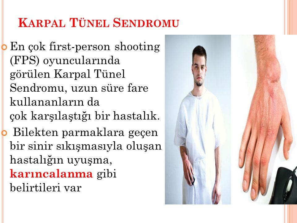 K ARPAL T ÜNEL S ENDROMU En çok first-person shooting (FPS) oyuncularında görülen Karpal Tünel Sendromu, uzun süre fare kullananların da çok karşılaşt