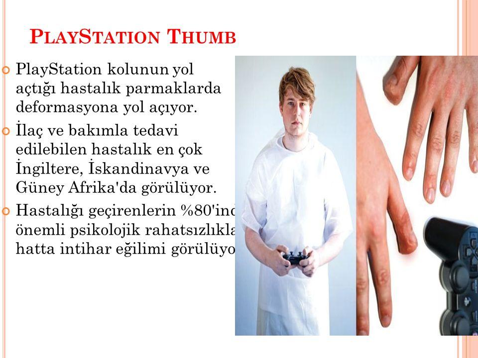 P LAY S TATION T HUMB PlayStation kolunun yol açtığı hastalık parmaklarda deformasyona yol açıyor. İlaç ve bakımla tedavi edilebilen hastalık en çok İ