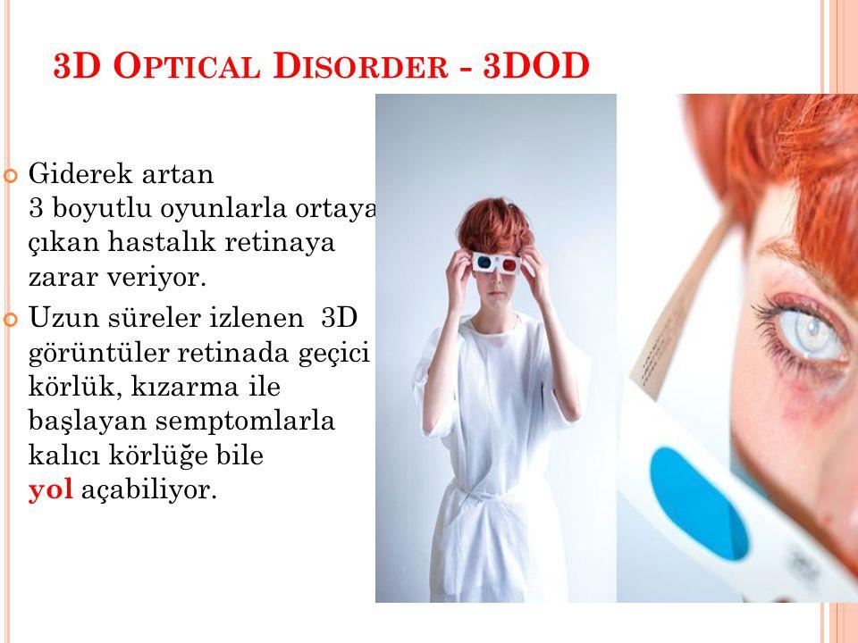 3D O PTICAL D ISORDER - 3DOD Giderek artan 3 boyutlu oyunlarla ortaya çıkan hastalık retinaya zarar veriyor. Uzun süreler izlenen 3D görüntüler retina