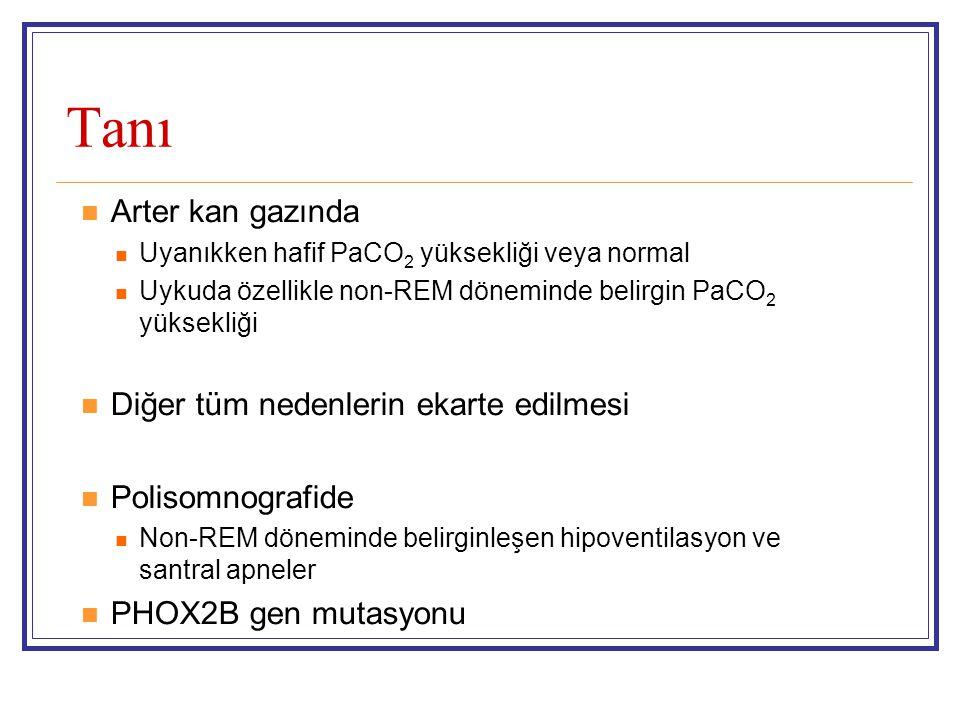 Tanı Arter kan gazında Uyanıkken hafif PaCO 2 yüksekliği veya normal Uykuda özellikle non-REM döneminde belirgin PaCO 2 yüksekliği Diğer tüm nedenlerin ekarte edilmesi Polisomnografide Non-REM döneminde belirginleşen hipoventilasyon ve santral apneler PHOX2B gen mutasyonu