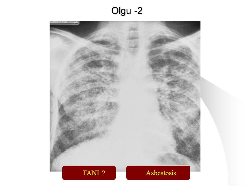 114 TANI ?Asbestosis Olgu -2