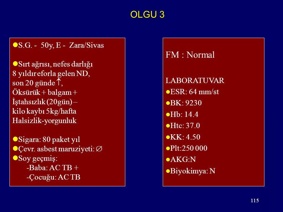 115 OLGU 3 S.G. - 50y, E - Zara/Sivas Sırt ağrısı, nefes darlığı 8 yıldır eforla gelen ND, son 20 günde , Öksürük + balgam + İştahsızlık (20gün) – ki