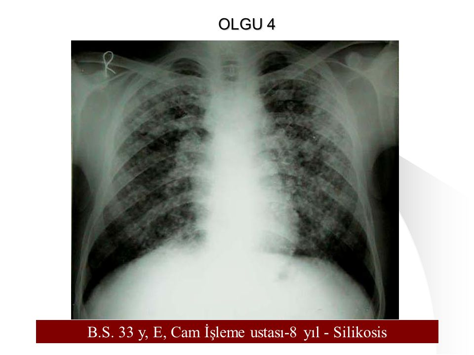 121 B.S. 33 y, E, Cam İşleme ustası-8 yıl - Silikosis OLGU 4