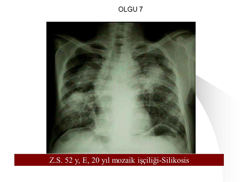 128 Z.S. 52 y, E, 20 yıl mozaik işçiliği-Silikosis OLGU 7
