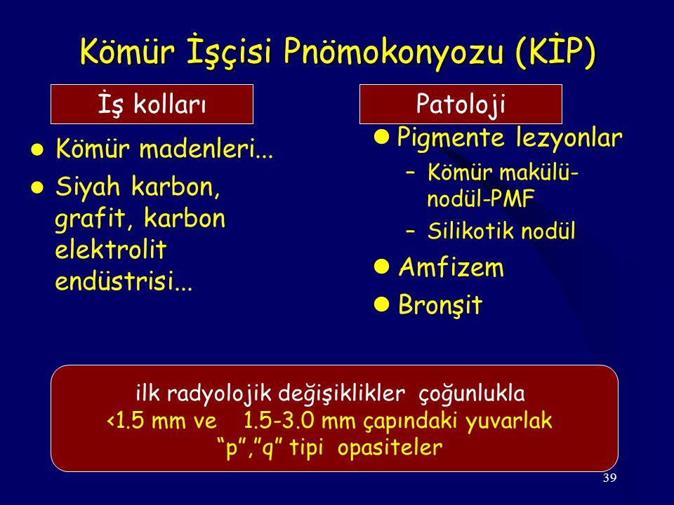 39 Kömür İşçisi Pnömokonyozu (KİP) Kömür madenleri...