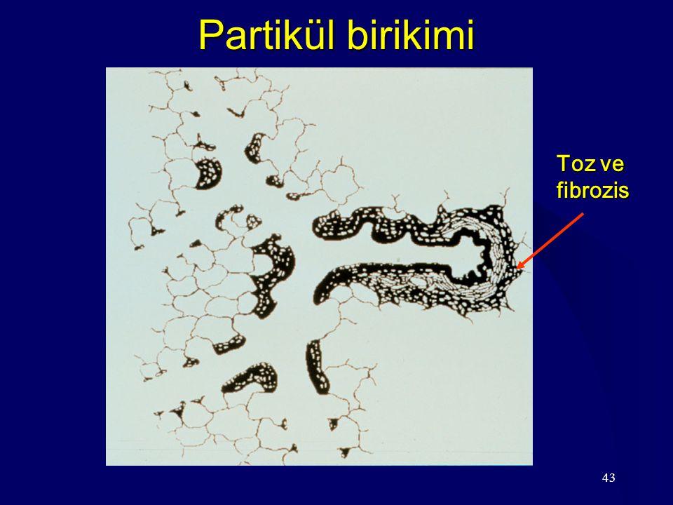43 Partikül birikimi Toz ve fibrozis