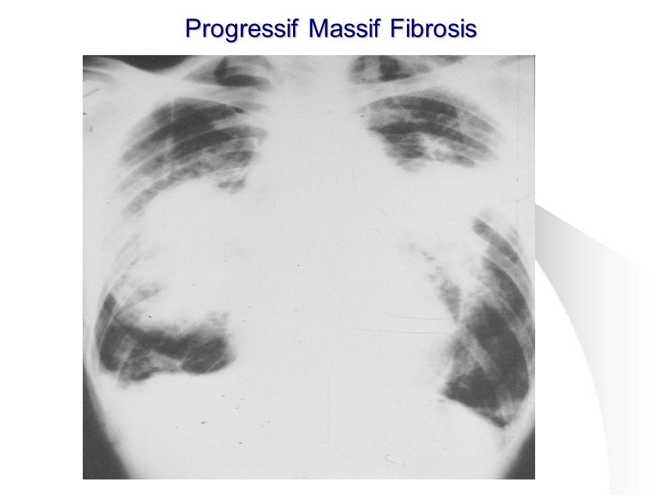 49 Progressif Massif Fibrosis