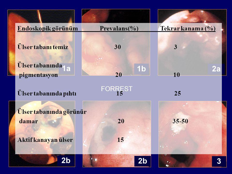 1a 3 1b 2a 2b FORREST Endoskopik görünüm Prevalans(%) Tekrar kanama (%) Ülser tabanı temiz 30 3 Ülser tabanında pigmentasyon 20 10 Ülser tabanında pıhtı 15 25 Ülser tabanında görünür damar 20 35-50 Aktif kanayan ülser 15