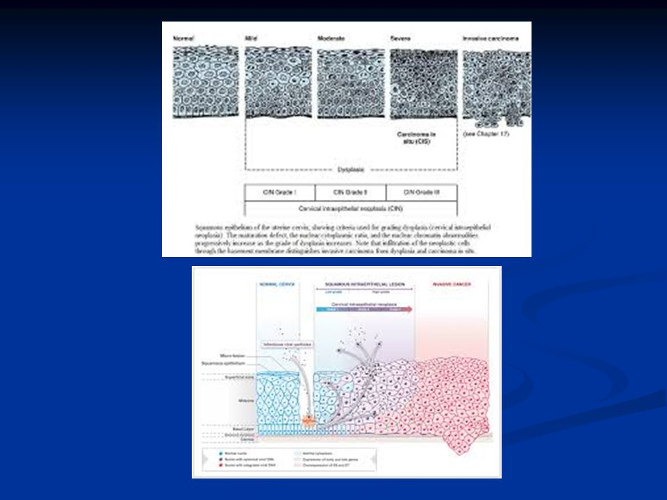 Serviks Kanserinin Evrelemesi(FIGO2009) Evre I: Servikse sınırlı karsinom(corpus yayılımı gözardı edilir) Evre IA: yalnız mikroskobik olarak tanımlanır,gözle görülmez Evre IA: yalnız mikroskobik olarak tanımlanır,gözle görülmez Evre IA1: İnvazyon derinliği ≤ 3mm, genişiği<7 mm Evre IA1: İnvazyon derinliği ≤ 3mm, genişiği<7 mm Evre IA2: İnvazyon derinliği >3-5 mm,genişliği 3-5 mm,genişliği <7 mm Evre IB: servikse sınırlı klinik lezyon veya > evre1A preklinik lezyon Evre IB: servikse sınırlı klinik lezyon veya > evre1A preklinik lezyon Evre IB1: Lezyon ≤ 4 cm Evre IB1: Lezyon ≤ 4 cm Evre IB2: Lezyon > 4 cm Evre IB2: Lezyon > 4 cm Evre II: Serviks dışına çıkmış,pelvik duvara ulaşmamış karsinom,2/3 üst vajen tutulumu var Evre IIA: Belirgin parametriyal tutulum yok Evre IIA: Belirgin parametriyal tutulum yok IIA1: lezyon ≤ 4 cm IIA1: lezyon ≤ 4 cm IIA2:lezyon >4 cm IIA2:lezyon >4 cm Evre IIB: Belirgin parametriyal tutulum var Evre IIB: Belirgin parametriyal tutulum var Evre III: Pelvik duvara ulaşmış karsinom Evre IIIA: Pelvik duvara yayılım yok, 1/3 alt alt vajen tutulumu var Evre IIIA: Pelvik duvara yayılım yok, 1/3 alt alt vajen tutulumu var Evre IIIB: Pelvik duvara yayılım var ve/veya hidronefroz veya nonfoksiyone böbrek Evre IIIB: Pelvik duvara yayılım var ve/veya hidronefroz veya nonfoksiyone böbrek Evre IV: Gerçek pelvis dışına ulaşmış karsinom Evre IVA: Komşu organlara yayılım(klinik veya biopsi ile kanıtlanmış olarak mesane ve rektum mukozası tutulumu var) Evre IVA: Komşu organlara yayılım(klinik veya biopsi ile kanıtlanmış olarak mesane ve rektum mukozası tutulumu var) Evre IVB: Uzak metastaz Evre IVB: Uzak metastaz