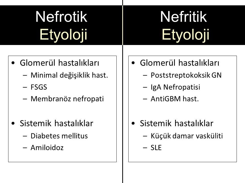 Nefrotik Etyoloji Glomerül hastalıkları –Minimal değişiklik hast.