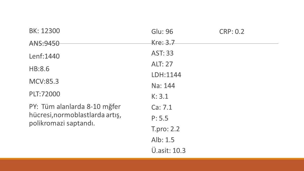 BK: 12300 ANS:9450 Lenf:1440 HB:8.6 MCV:85.3 PLT:72000 PY: Tüm alanlarda 8-10 mğfer hücresi,normoblastlarda artış, polikromazi saptandı. Glu: 96 CRP: