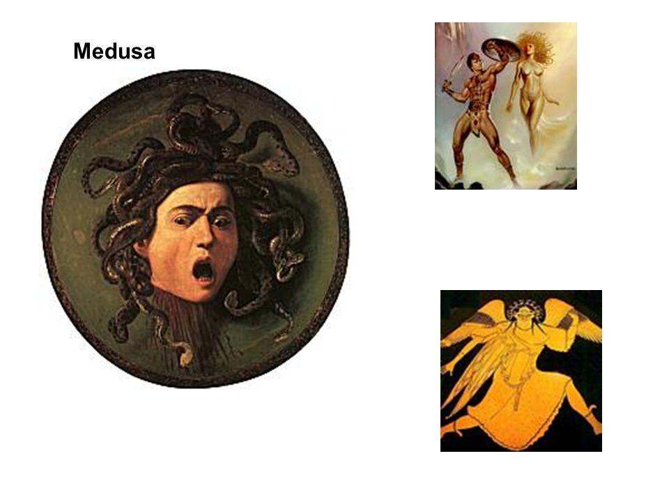 Karaciğer sirozunda görülen ve umblikal venlerin genişlemesi sonucunda oluşan caput medusa belirtisindeki Medusa'nın öyküsü (Venlerin görüntüsü, Medusa'nın yılansı saçlarına benzetilmektedir)