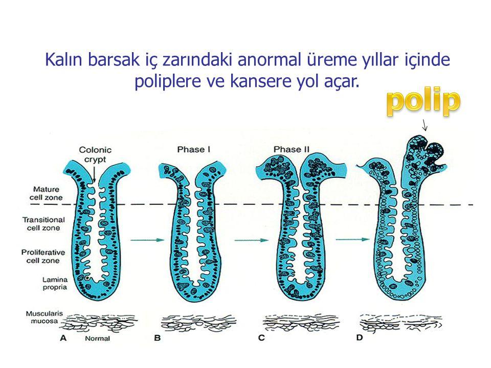 Kalın barsak iç zarındaki anormal üreme yıllar içinde poliplere ve kansere yol açar.