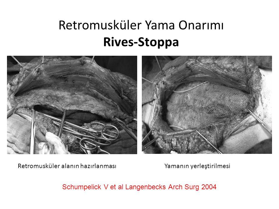 Retromusküler Yama Onarımı Rives-Stoppa Retromusküler alanın hazırlanması Yamanın yerleştirilmesi Schumpelick V et al Langenbecks Arch Surg 2004