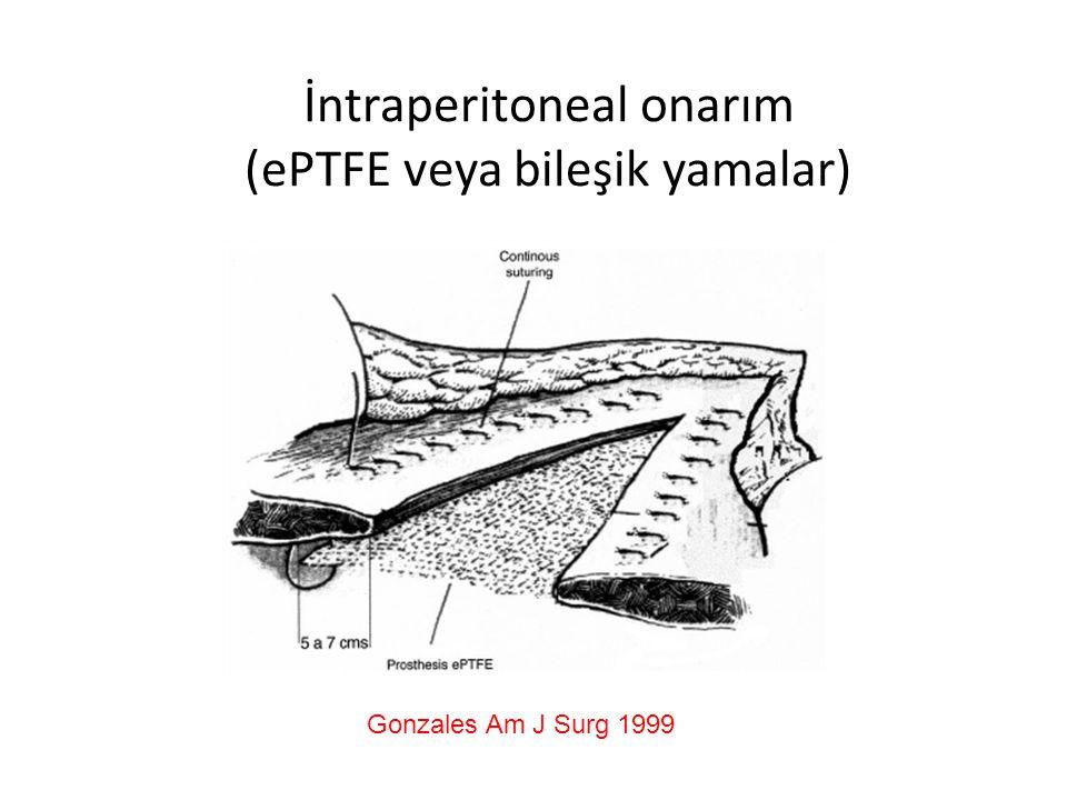 İntraperitoneal onarım (ePTFE veya bileşik yamalar) Gonzales Am J Surg 1999