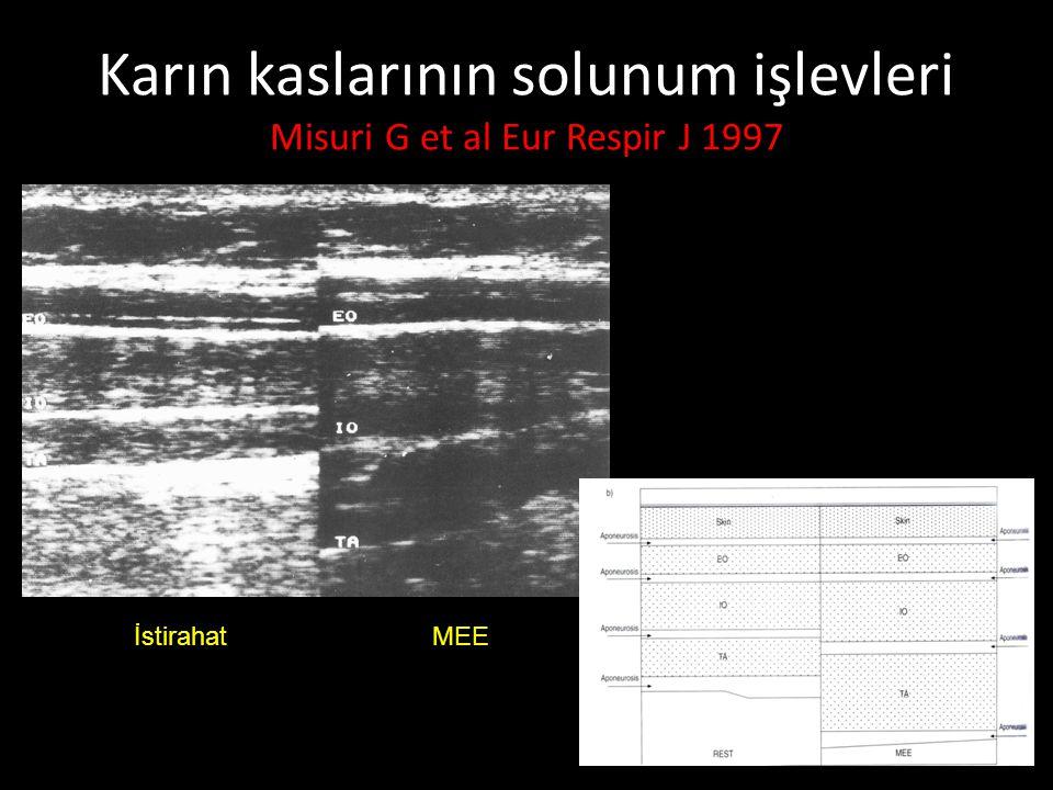 Karın kaslarının solunum işlevleri Misuri G et al Eur Respir J 1997 İstirahat MEE