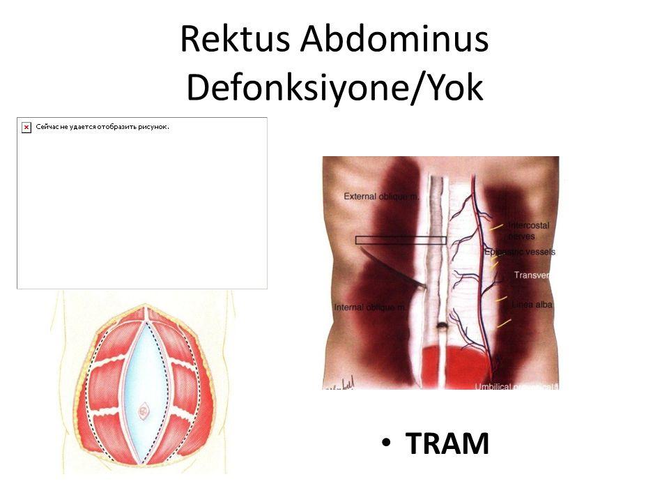 Rektus Abdominus Defonksiyone/Yok TRAM