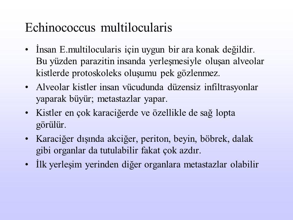 Echinococcus multilocularis İnsan E.multilocularis için uygun bir ara konak değildir. Bu yüzden parazitin insanda yerleşmesiyle oluşan alveolar kistle