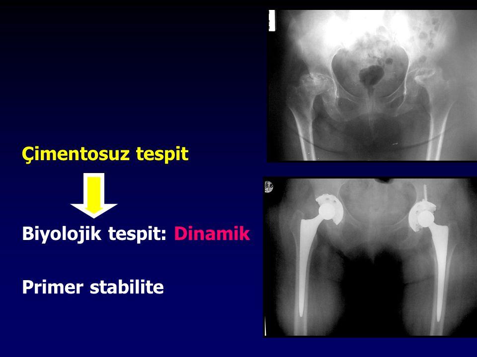 Kliniğimizde; Asetabuler komponent çimentosuz Femoral komponent %70 çimentosuz olarak uygulanmaktadır