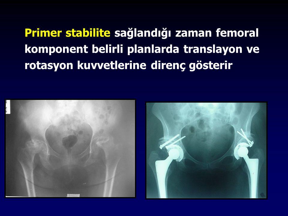 Primer stabilite Press fit Line to line Diafiz veya metafizde sıkışan stem Uzun dönemde biyolojik tespit Ingrowth Ongrowth