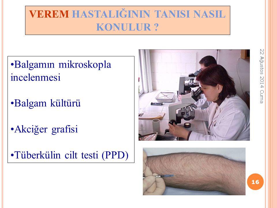 VEREM HASTALIĞININ TANISI NASIL KONULUR ? Balgamın mikroskopla incelenmesi Balgam kültürü Akciğer grafisi Tüberkülin cilt testi (PPD) 16 22 Ağustos 20