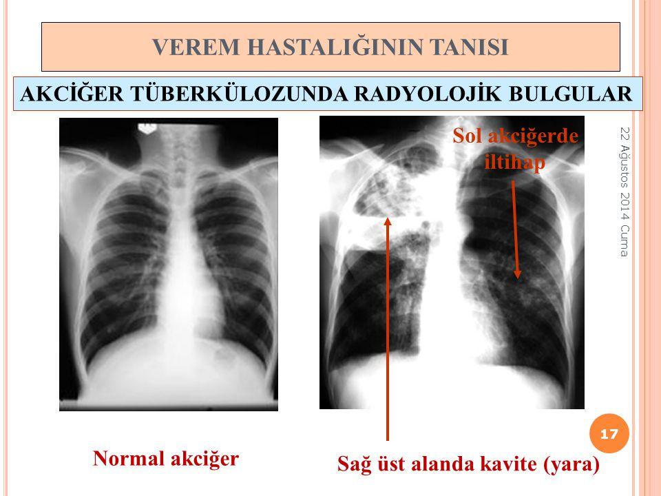 VEREM HASTALIĞININ TANISI Sağ üst alanda kavite (yara) Sol akciğerde iltihap Normal akciğer AKCİĞER TÜBERKÜLOZUNDA RADYOLOJİK BULGULAR 17 22 Ağustos 2