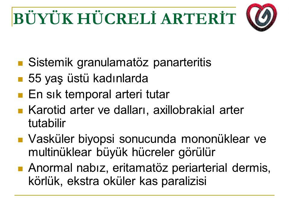 BÜYÜK HÜCRELİ ARTERİT Sistemik granulamatöz panarteritis 55 yaş üstü kadınlarda En sık temporal arteri tutar Karotid arter ve dalları, axillobrakial a