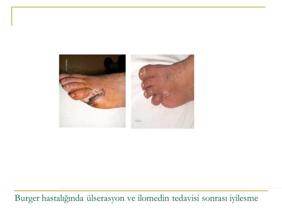 RAYNAUD'S HASTALIĞI Soğukla temasta extremitelerde uyuşukluk, sızlama, yangı hissi, renk değisikliği Vasosapastik damar hastalığı Kadınlarda erkeklerden daha sık Arteriel vasokonstriksiyonun mekanizması bilinmemektedir