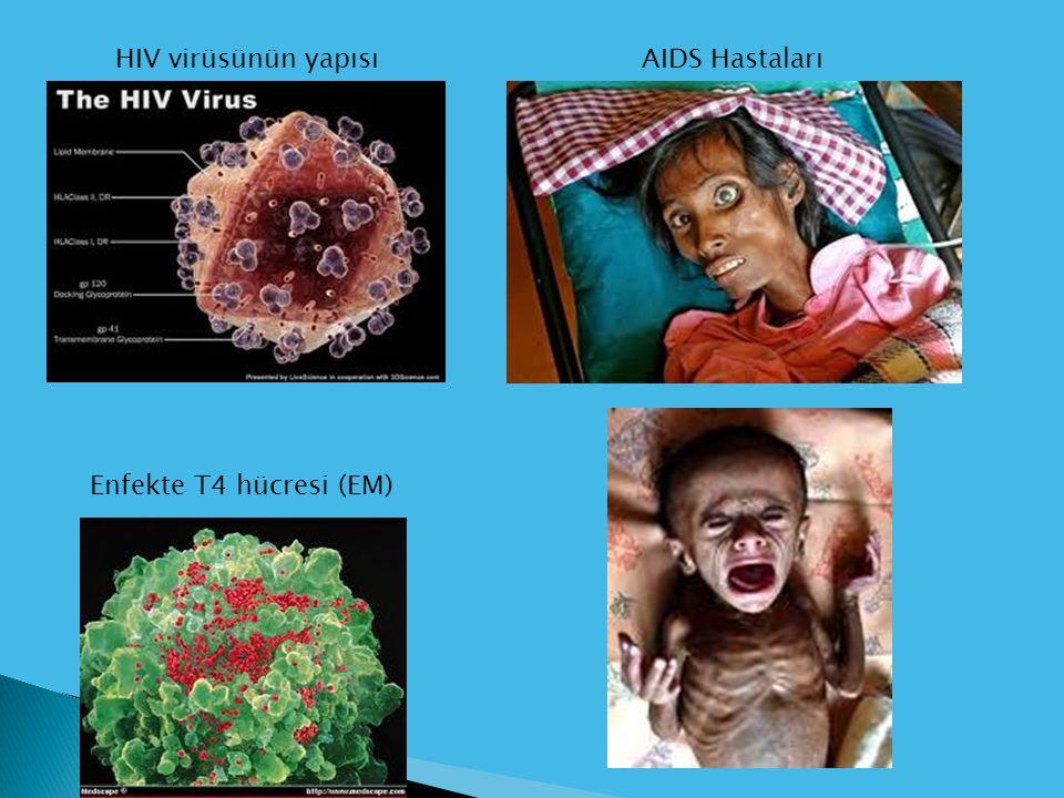 Enfekte T4 hücresi (EM) HIV virüsünün yapısıAIDS Hastaları