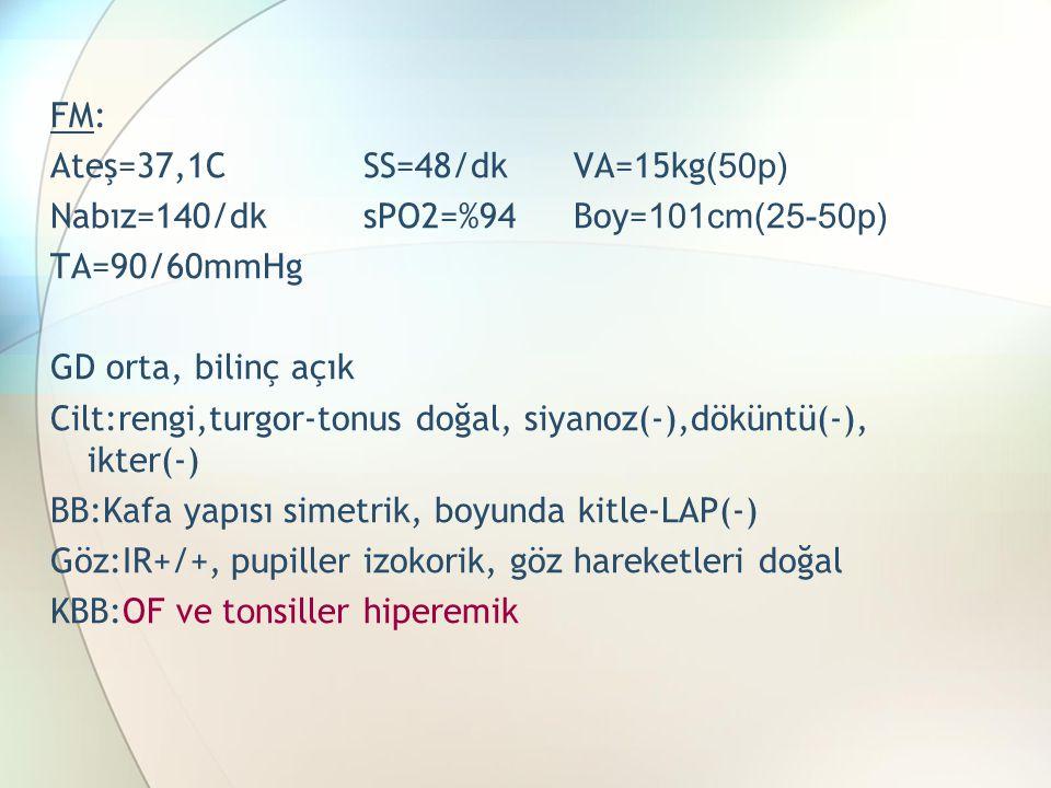 FM: Ateş=37,1CSS=48/dkVA=15kg (50p) Nabız=140/dksPO2=%94Boy= 101cm(25-50p) TA=90/60mmHg GD orta, bilinç açık Cilt:rengi,turgor-tonus doğal, siyanoz(-),döküntü(-), ikter(-) BB:Kafa yapısı simetrik, boyunda kitle-LAP(-) Göz:IR+/+, pupiller izokorik, göz hareketleri doğal KBB:OF ve t o nsiller hiperemik