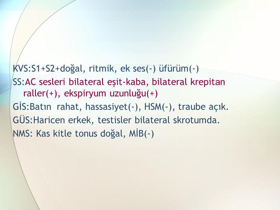 KVS:S1+S2+doğal, ritmik, ek ses(-) üfürüm(-) SS:AC sesleri bilateral eşit-kaba, bilateral krepit a n raller(+), ekspiryum uzunluğu(+) GİS:Batın rahat, hassasiyet(-), HSM(-), traube açık.