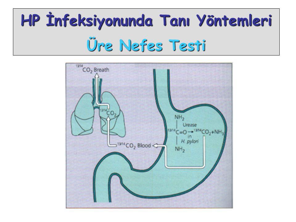 HP İnfeksiyonunda Tanı Yöntemleri Üre Nefes Testi